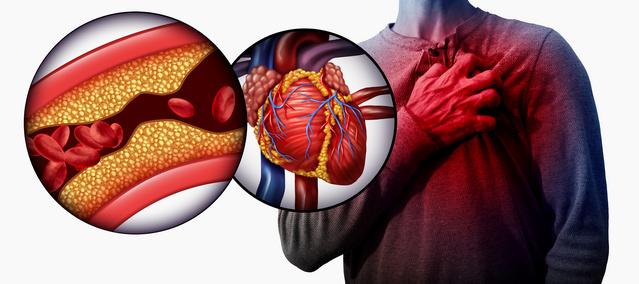 Срцеви болести